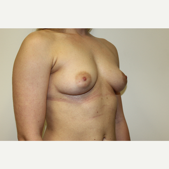Breast Augmentation before 3418107