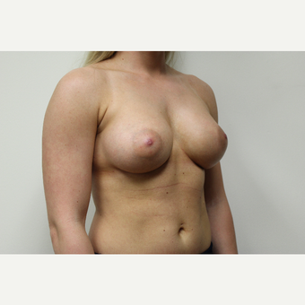 Breast Augmentation after 3418107
