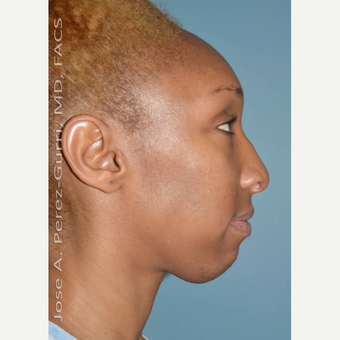 25-34 year old woman treated with Chin Implant before 3691144