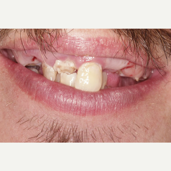 25-34 year old man treated with All-on-4 Dental Implants before 3213406