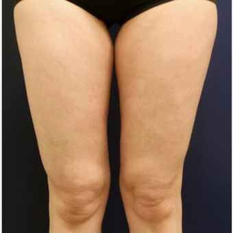 45-54 year old woman treated with Cellulaze after 3142822