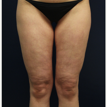 45-54 year old woman treated with Cellulaze before 3142822