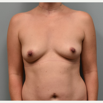 35-44 year old woman treated with Sientra Breast Implants before 3384912