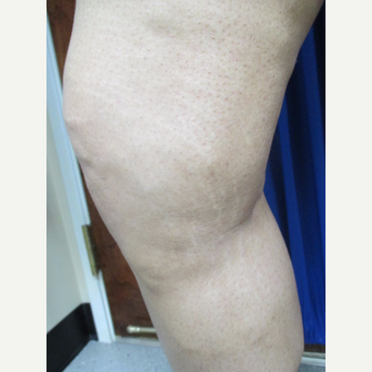 25-34 year old woman treated with EVLT and Sclerotherapy