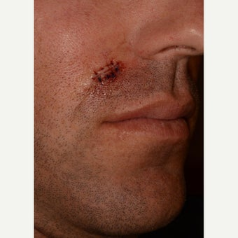 Removal of squamous cell carcinoma from the face of a 34yo man before 1549591