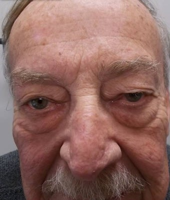 65-74 year old man treated with Eyelid Surgery before 3227744