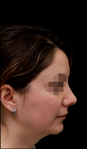 25-34 year old woman treated with Rhinoplasty after 3204709