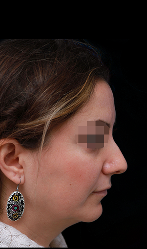 25-34 year old woman treated with Rhinoplasty before 3204709