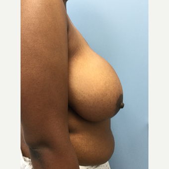 18-24 year old woman treated with Breast Reduction before 3050267