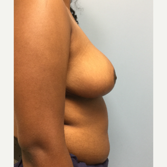 18-24 year old woman treated with Breast Reduction after 3050267