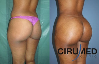 Fat transfer buttock augmentation (Brazilian butt lift) 1125120