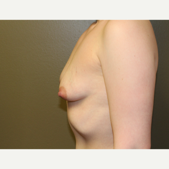 25-34 year old woman treated with Breast Augmentation before 3175823