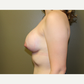 25-34 year old woman treated with Breast Augmentation after 3175823