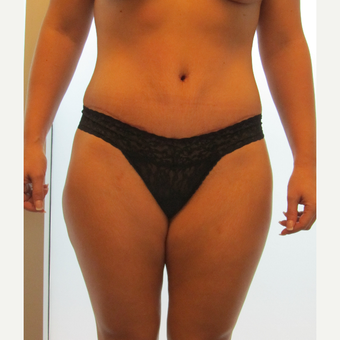 Abdominoplasty/Tummy Tuck after 3130375