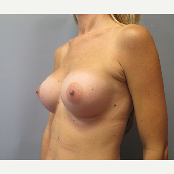 25-34 year old woman treated with Breast Augmentation after 3538934