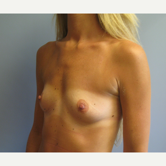 25-34 year old woman treated with Breast Augmentation before 3538934
