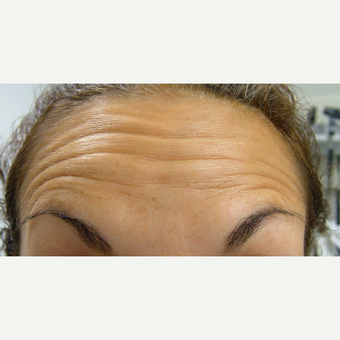 35-44 year old woman treated with Botox before 3320205