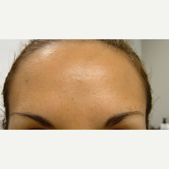 35-44 year old woman treated with Botox after 3320205