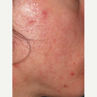 25-34 year old woman treated with Acne Treatment after 2713420