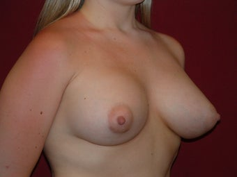 Breast Augmentation 683108