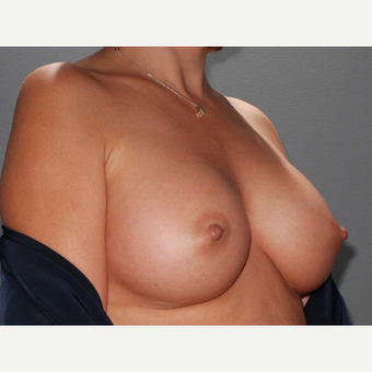 43 y/o Transaxillary Submuscular Breast Augmentation after 3066310