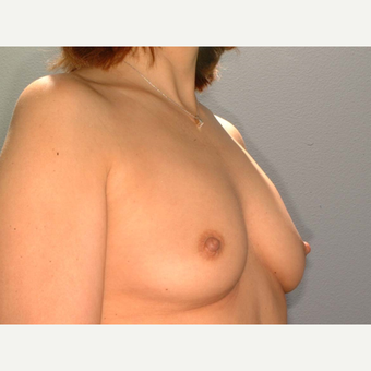 43 y/o Transaxillary Submuscular Breast Augmentation before 3066310