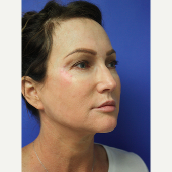 45-54 year old woman treated with Facelift Revision after 3405342