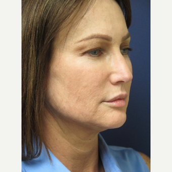 45-54 year old woman treated with Facelift Revision before 3405342