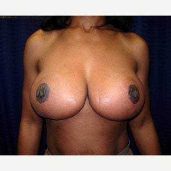 35-44 year old woman treated with Breast Reduction after 1793635