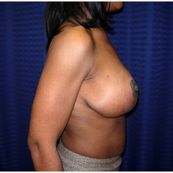 35-44 year old woman treated with Breast Reduction 1793635