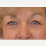 55-64 year old woman treated with Eyelid Surgery before 3093665