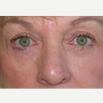 55-64 year old woman treated with Eyelid Surgery after 3093665