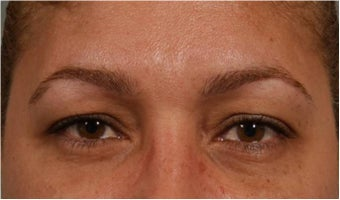 44 Year olf female with sagging of her eye brows and upper eye lids.  She doesn't want surgery before 766000