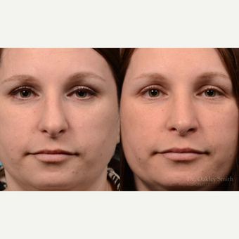 25-34 year old woman treated with Rhinoplasty before 3821376