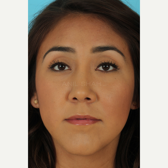 25-34 year old woman treated with Rhinoplasty after 3690867