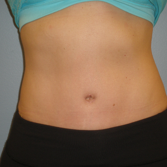 35-44 year old woman treated with Tummy Tuck and Flank Liposuction after 3103406