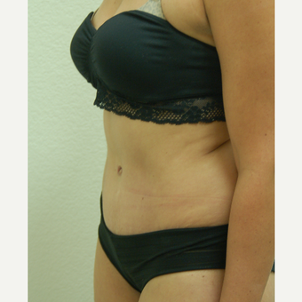35-44 year old woman treated with Tummy Tuck after 3310919
