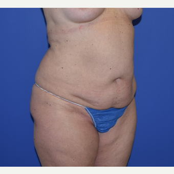 35-44 year old woman treated with No-Drain Tummy Tuck before 3649511