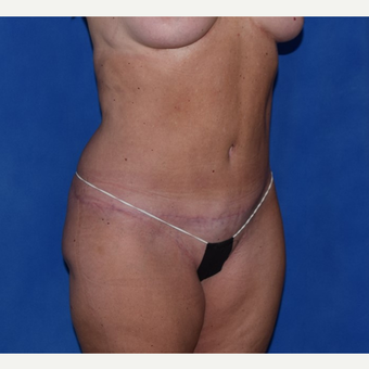 35-44 year old woman treated with No-Drain Tummy Tuck after 3649511