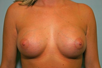 21 y/o 110 lb, 300 cc Breast Augmentation after 928178