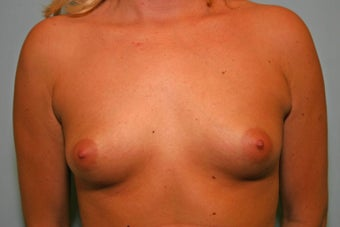 21 y/o 110 lb, 300 cc Breast Augmentation before 928178