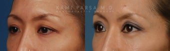 Before and After Upper and Lower Eyelid Blepharoplasty Surgery before 714172