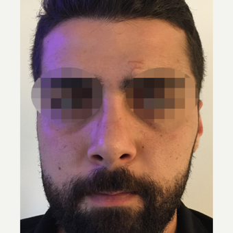 25-34 year old man treated with Rhinoplasty after 3329815