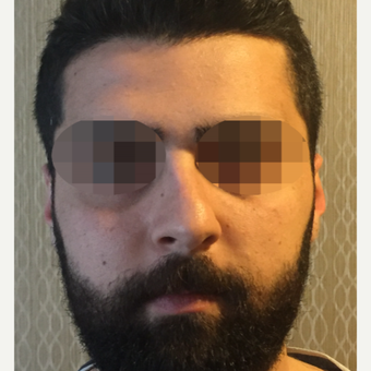 25-34 year old man treated with Rhinoplasty before 3329815