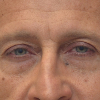 35-44 year old man treated with Eyelid Surgery before 3253500
