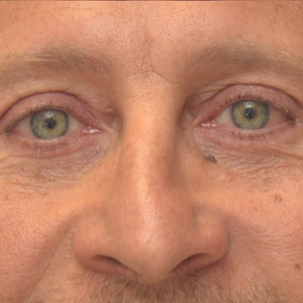 35-44 year old man treated with Eyelid Surgery after 3253500