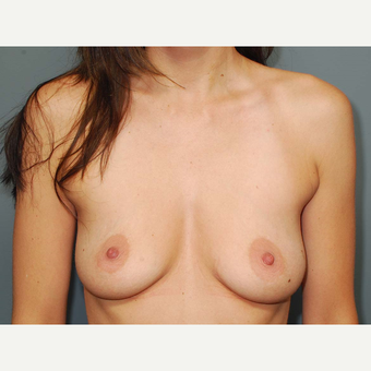 35 y/o Dual Plane Breast Augmentation before 3065830