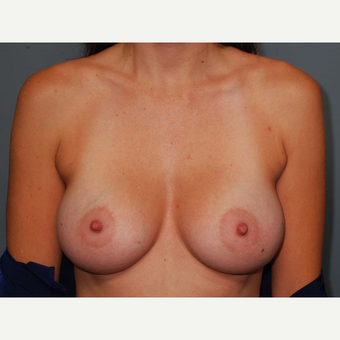 35 y/o Dual Plane Breast Augmentation after 3065830