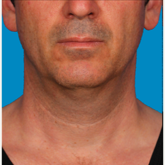 "55-64 year old man treated with Kybella for corruption of sub mental fullness /""double chin"" before 2335020"