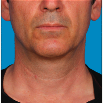 "55-64 year old man treated with Kybella for corruption of sub mental fullness /""double chin"" after 2335020"